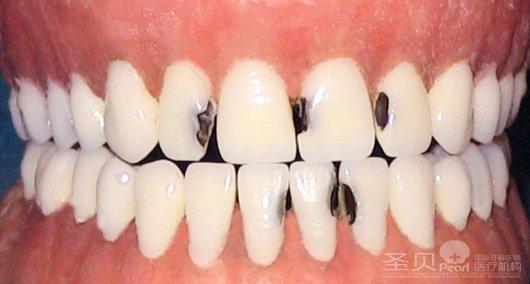 幼儿龋齿修复后图片