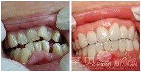 牙齿 上海/牙齿拥挤矫正前后对比图