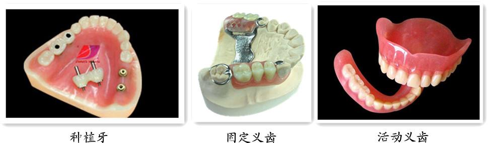 3、种植义齿:在缺牙区植入种植体(即:人工牙根),待种植体与骨组织有效愈合后再修复。此种方法不需要磨牙,对两侧牙齿无损伤;适用于大多数健康的成年人,一般不主张未成年人做种植义齿。与上述两种修复方法比较,费用较高。 医生表示,以上三种修复方法中,种植牙是效果好的修复方法。