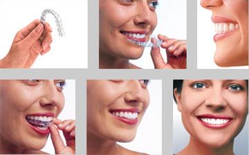 什么是隐形牙齿矫正图片