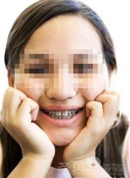 牙齿支架图片大全