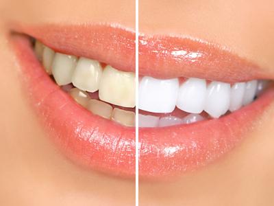 怎么快速让牙齿变白
